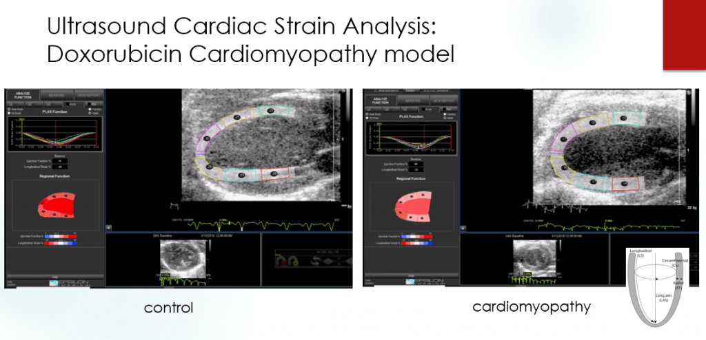 Ultrasound Cardiac Strain Analysis