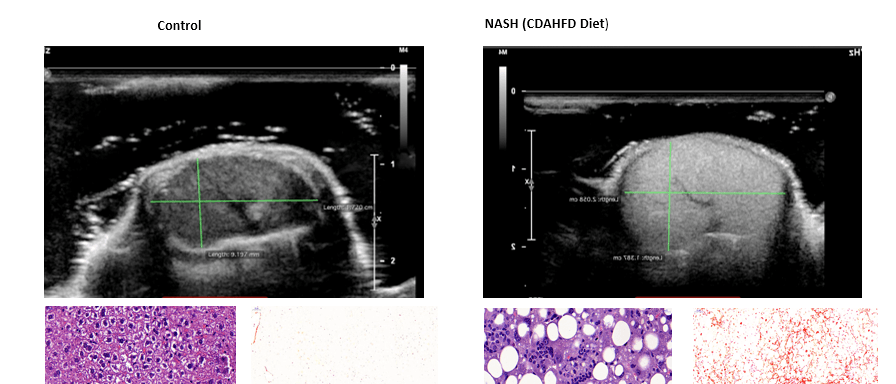 NASH Model: Ultrasound Imaging of Liver Fibrosis