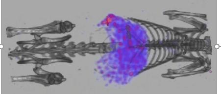Mebrofenin SPECT Hepatobiliary Function Imaging